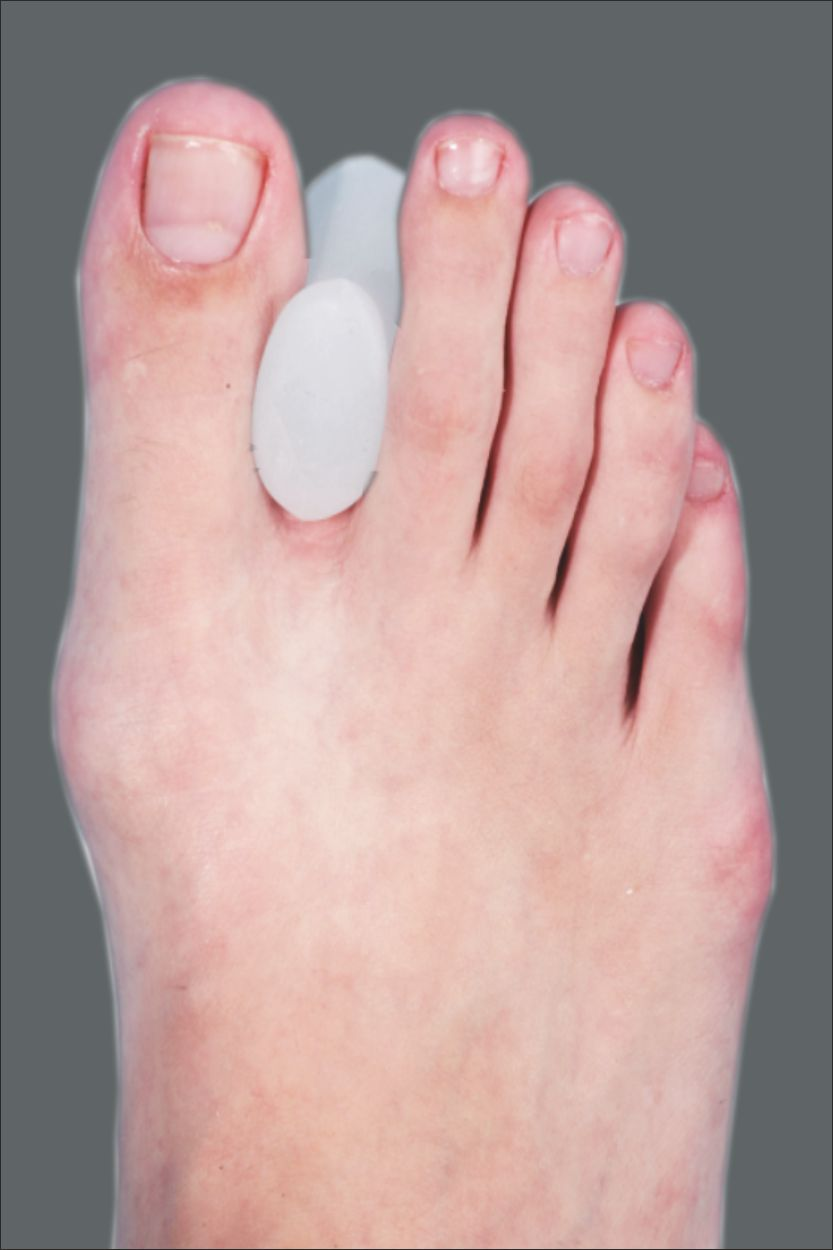 Tynor Toe Separator Silicon Buy Online At Best Price In